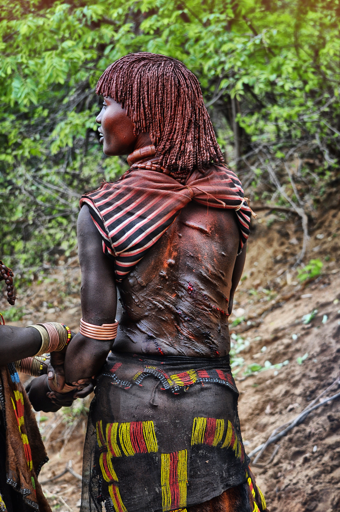 scars of hamer woman